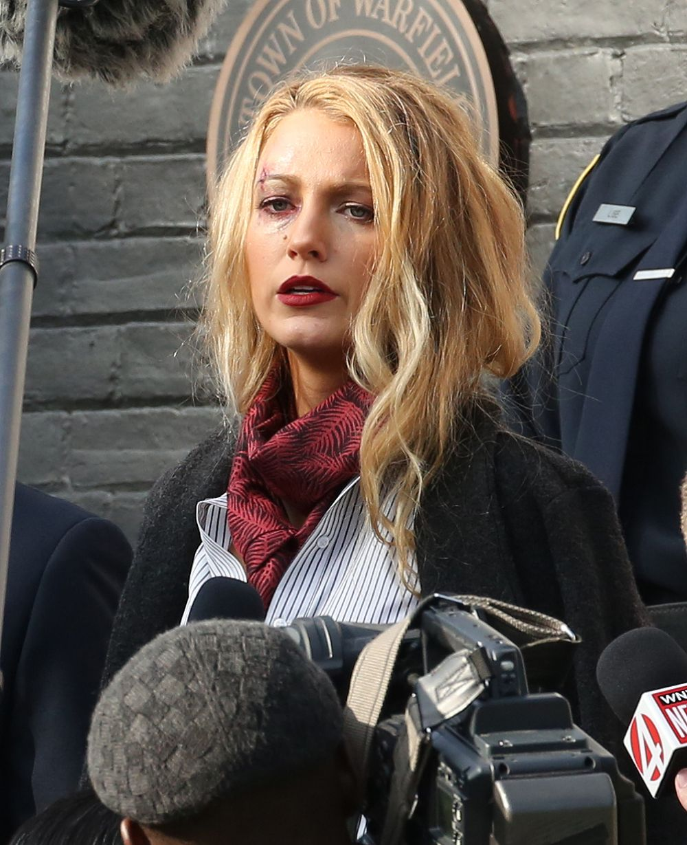 blake lively spotted with a black eye on set filming a simple favor in toronto canada celebzz. Black Bedroom Furniture Sets. Home Design Ideas
